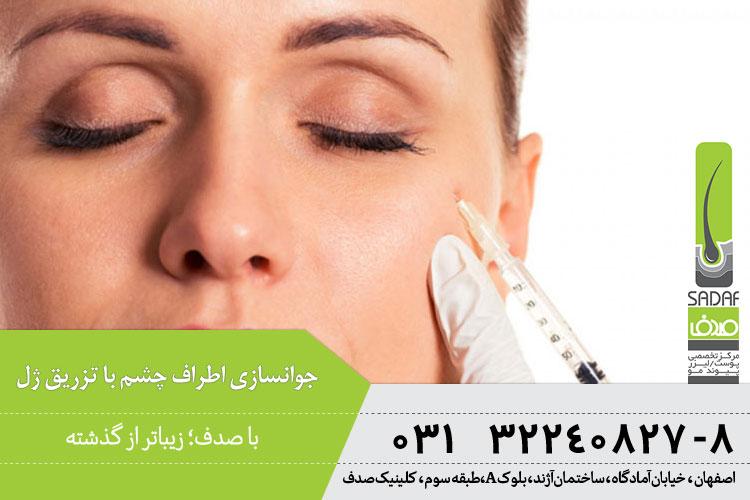 جوانسازی اطراف چشم با تزریق ژل