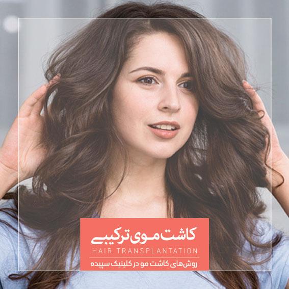 کاشت موی ترکیبی کلینیک سپیده دکتر اکبر مزروعی بهترین کاشت موی اصفهان