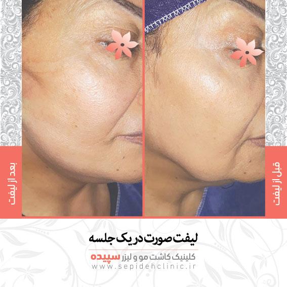 نمونه کار هایفو دکتر اکبر مزروعی بهترین  متخصص پوست مو و زیبایی اصفهان