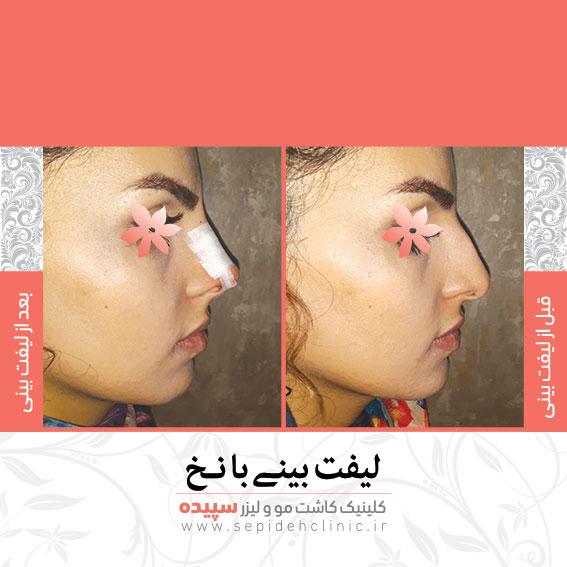 نمونه لیفت بینی با نخ کلینیک سپیده اصفهان دکتر اکبر مزروعی
