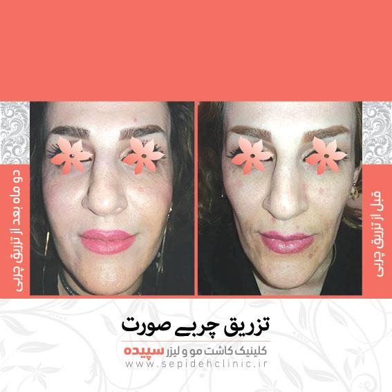 نمونه تزریق چربی صورت و گونه جوانسازی صورت کلینیک سپیده اصفهان دکتر اکبر مزوعی
