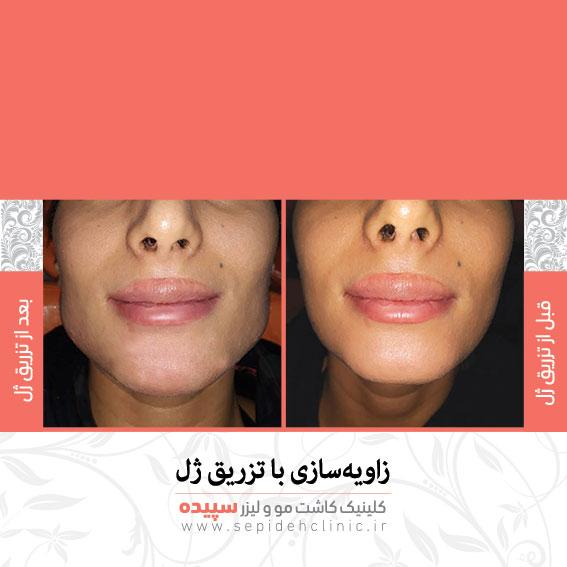 نمونه تزریق ژل صورت کلینیک کاشت مو و لیزر سپیده اصفهان دکتر اکبر مزروعی