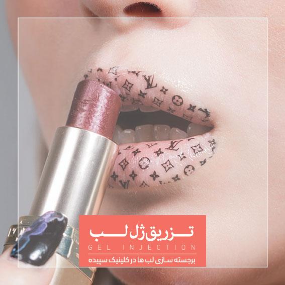 تزریق ژل لب کلینیک کاشت مو و لیزر سپیده دکتر اکبر مزروعی