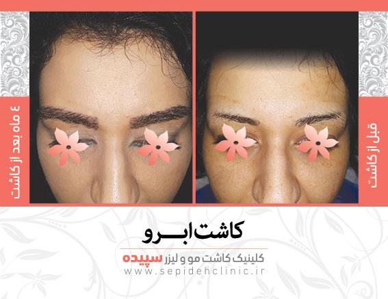 نمونه کاشت ابرو کلینیک کاشت مو و لیزر سپیده اصفهان دکتر اکبر مزروعی