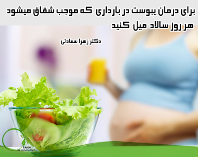 درمان یبوست,شقاق در بارداری
