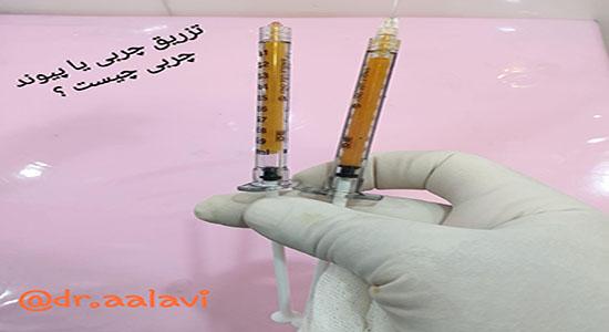 تزریق چربی یا پیوند چربی چیست؟