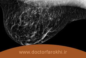سونوگرافی پستان چه روشی است و چرا انجام میشود؟
