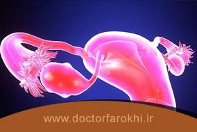 قبل از سونوگرافی تنبلی تخمدان رعایت چه نکاتی ضروری است؟