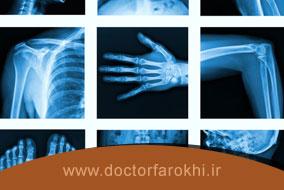رادیولوژی یا تصویربرداری تشخیصی چیست و چه انواعی دارد؟
