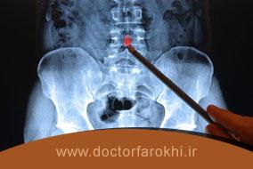 رادیولوژی ستون مهرهها چگونه انجام میشود؟