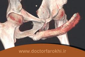 تشخیص ناتوانی جنسی ناشی از نشت وریدی آلت با سونوگرافی