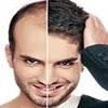 ارزیابی عمل کاشت موی طبیعی