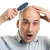 کاشت موی طبیعی و اسامی متفاوت آن در کلینیک های مختلف