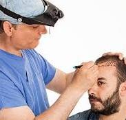 اهمیت خط مو و طراحی آن در کاشت موی طبیعی