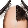 برنامه ریزی برای عمل کاشت مو