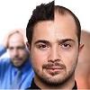 به افراد مختلف در مورد ریزش مو و کاشت مو بصورت شخصی و فردی نگاه کنید