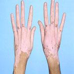درمان بیماری لک و پیس (ويتيليگو) بخش اول