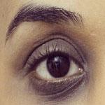 علتهای تیرگی دور چشم و درمانهای آن