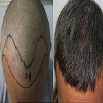 روش های مختلف پيوند مو - قسمت دوم
