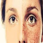 ليزر در برطرف كردن كک مک های پوست موثر است