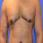 ژنيكوماستی (بزرگی پستان ) در مردان