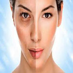 میزان اثر بخشی روش های دارویی در جوان سازی پوست (قسمت اول )