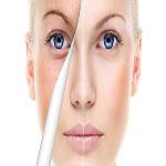 میزان اثر بخشی روش های دارویی در جوان سازی پوست (قسمت دوم  )