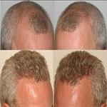 کاشت مو به روش FIT