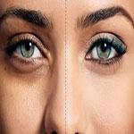 بهترین روش رفع گودی و کبودی زیر چشم