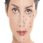 درمان موضعى جوش صورت؛قسمت اول