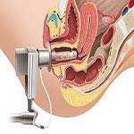 آتروفی واژن  علائم، تشخیص و درمان