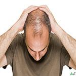 هشت روش موثر برای پیشگیری از ریزش مو در مردان