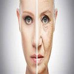 هفت عامل پیری پوست