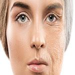 پیری پوست چیست ؟