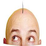 فریب تبلیغات کاشت مو را نخورید