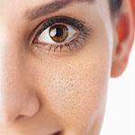 علل بروز و گسترش منافذ پوست