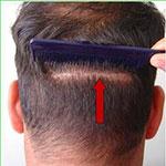 بانک مو  پس انداز مو برای عمل پیوند مو