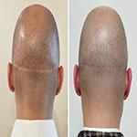 كاشت مو در محل جاى زخم روی  پوست سر