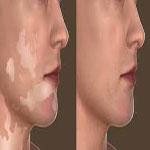 ویتلیگو و سفید کردن پوست با منوبنزن