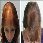 پیوند مو  در خانم ها چه زمانی  مناسب ترین درمان است ؟