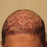 ترمیم مو در پوست سر زخمی