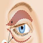 جراحی پلک (بلفاروپلاستی)