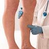 درمان واریس  پا و مویرگهای صورت با لیزر
