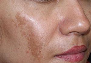 بهترین درمانهای ملاسما یا لک صورت چیست؟