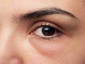 روشهای درمانی پف و تیرگی زیر چشم