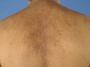 بیماری ماکولار آمیلوئیدوز و درمان آن