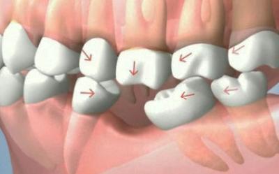 عوارض عدم جایگزینی دندان های از دست رفته