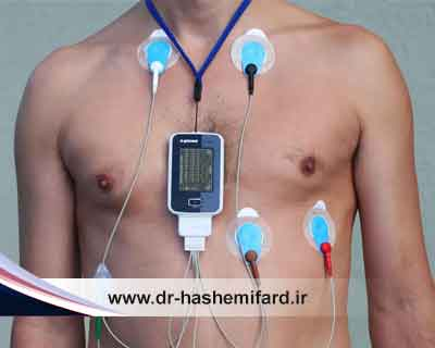 چه زمانی از هولتر قلب استفاده میشود؟