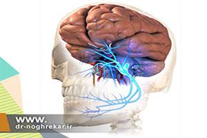 بلوک گانگلیون گاسرین برای درمان دردهای سر و صورت