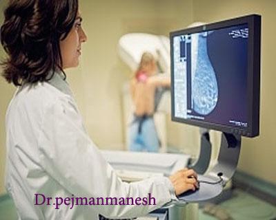 غربالگری با ماموگرافی